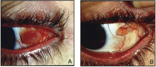 conjunctival pyogenic granulomas after strabismus surgery