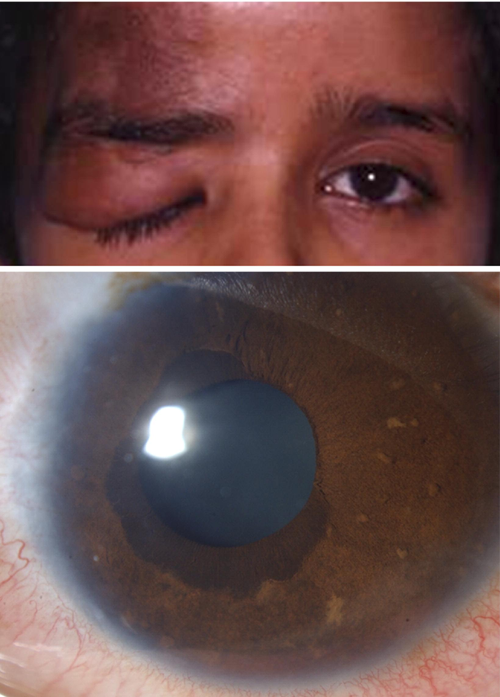Congenital Ectropion Uvea and Mechanisms of Glaucoma in ... | 1639 x 2285 jpeg 325kB