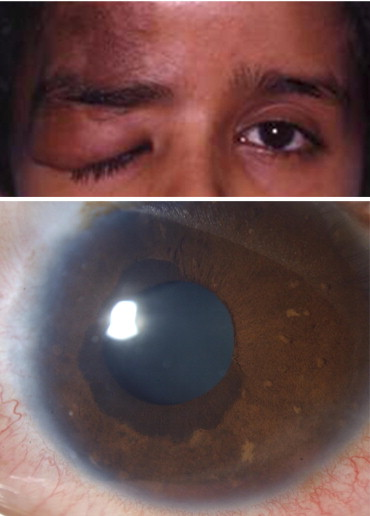 Congenital Ectropion Uvea and Mechanisms of Glaucoma in ... | 370 x 516 jpeg 35kB