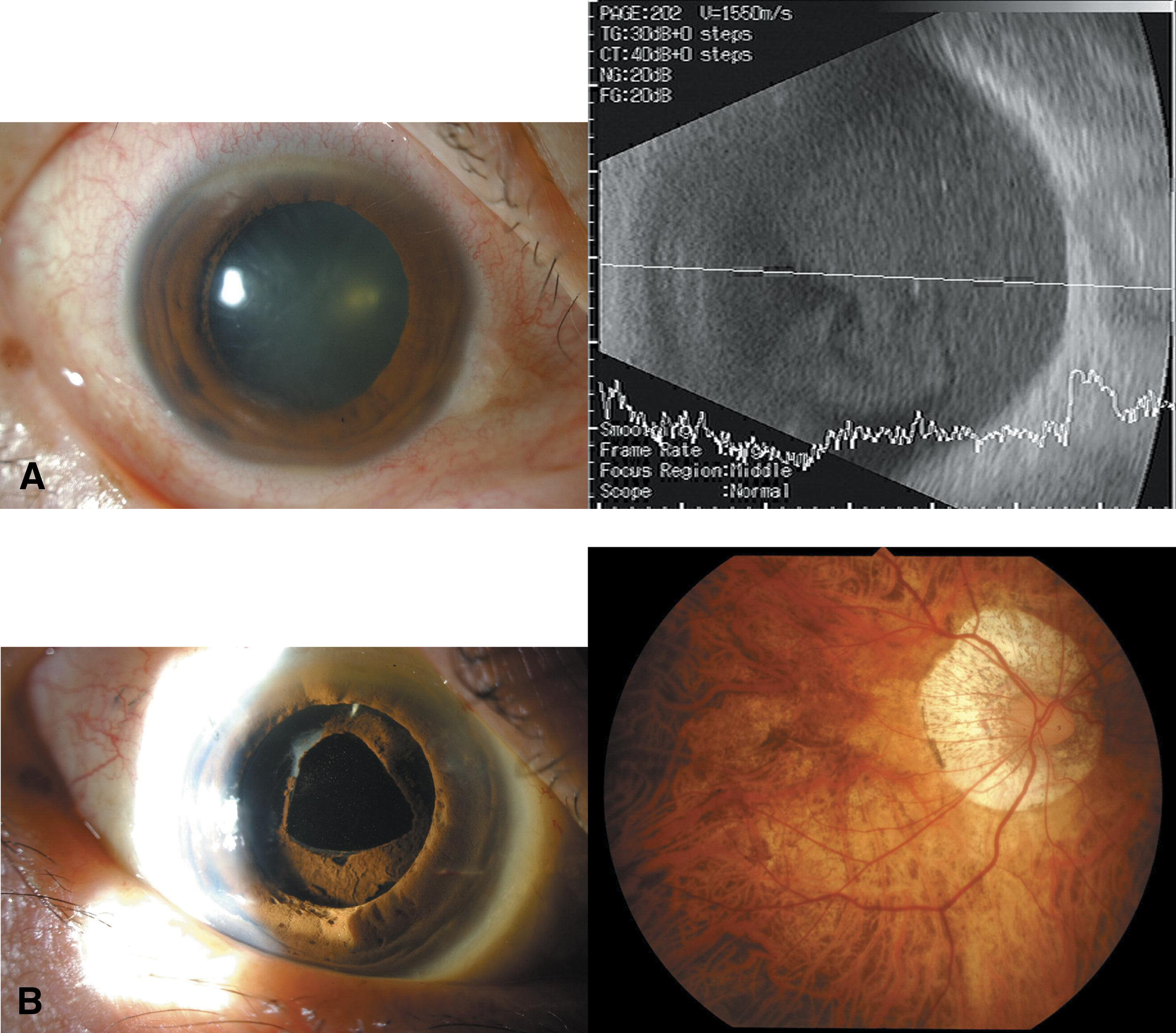 Intraocular Inflammation after Intravitreal Injection of BevacizumabIntravitreal Injection Endophthalmitis
