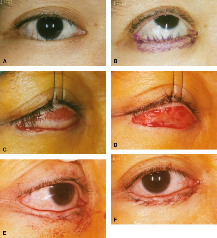 Epiblepharon in East Asian Patients: The Singapore ...