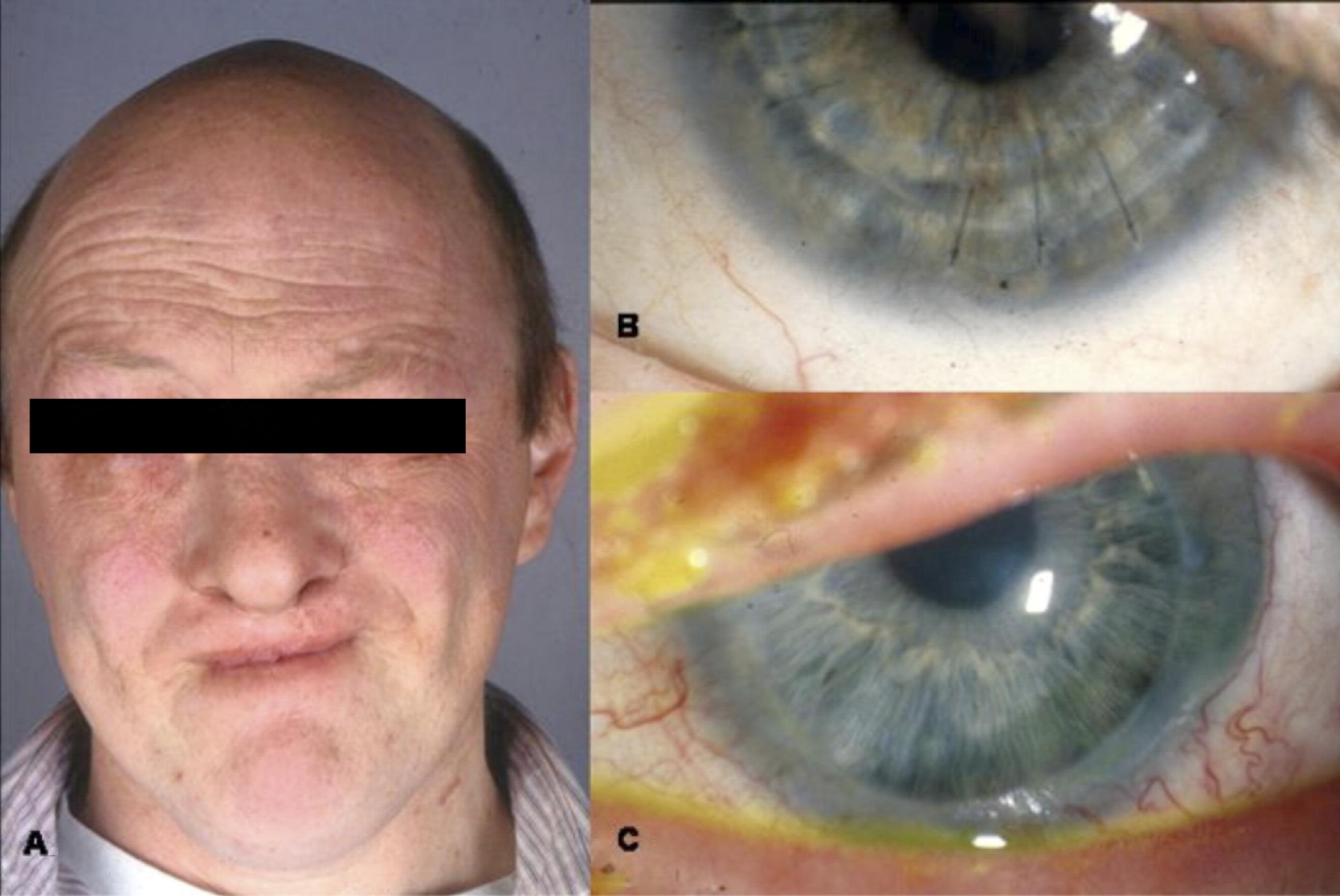 Limbal Stem Cell Deficiency and Ocular Phenotype in ...